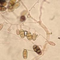 pithomyces sp.